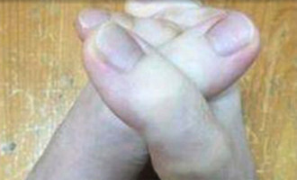 Vous pensez voir des mains?Vous vous trompez!