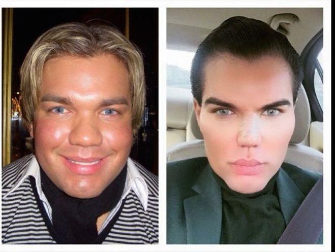 Ken humain : découvrez à quoi il ressemblait avant la chirurgie esthétique