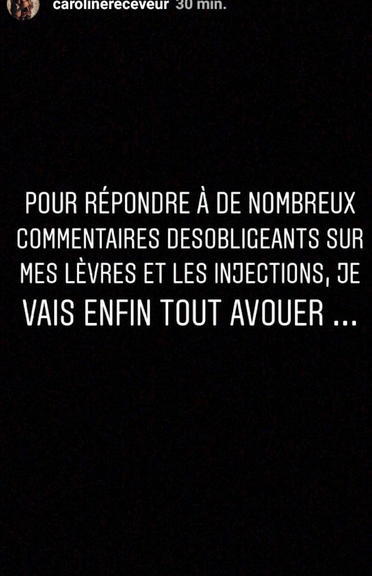"""Caroline Receveur et la chirurgie esthétique : Elle avoue """"enfin tout"""""""
