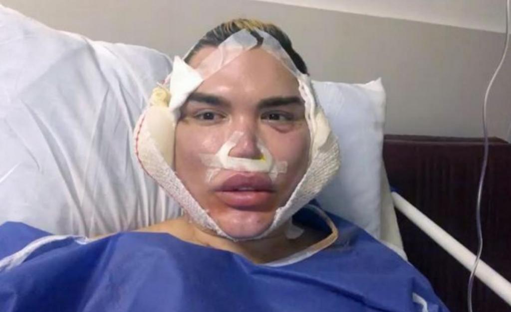 Le Ken humain ne ressemble plus du tout à ça : Les images choc après sa dernière opération