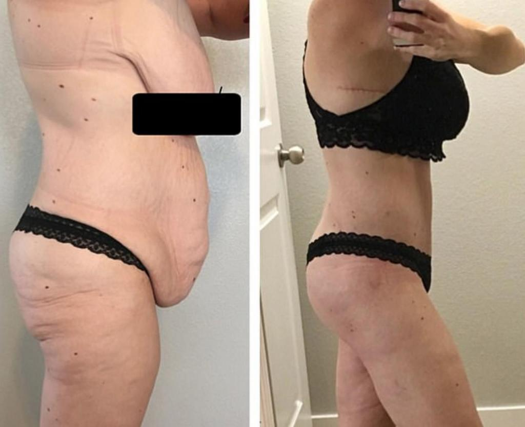 Avant/après : Habituée à manger 3 burgers par jour, elle perd finalement 50 kilos