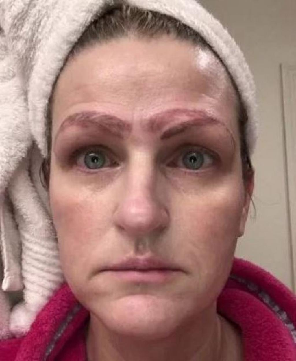 Microblading Elle se retrouve avec 4 sourcils tatoués sur le visage