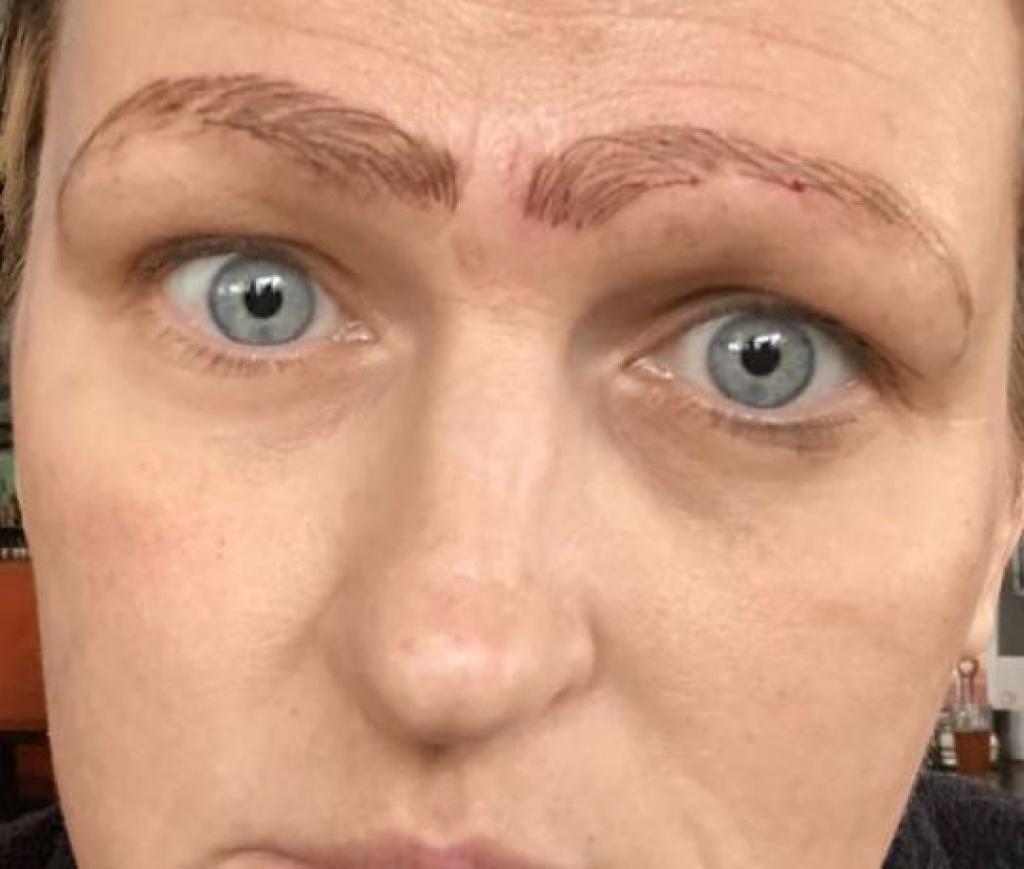 Microblading Elle se retrouve avec 4 sourcils tatoués sur le visage1