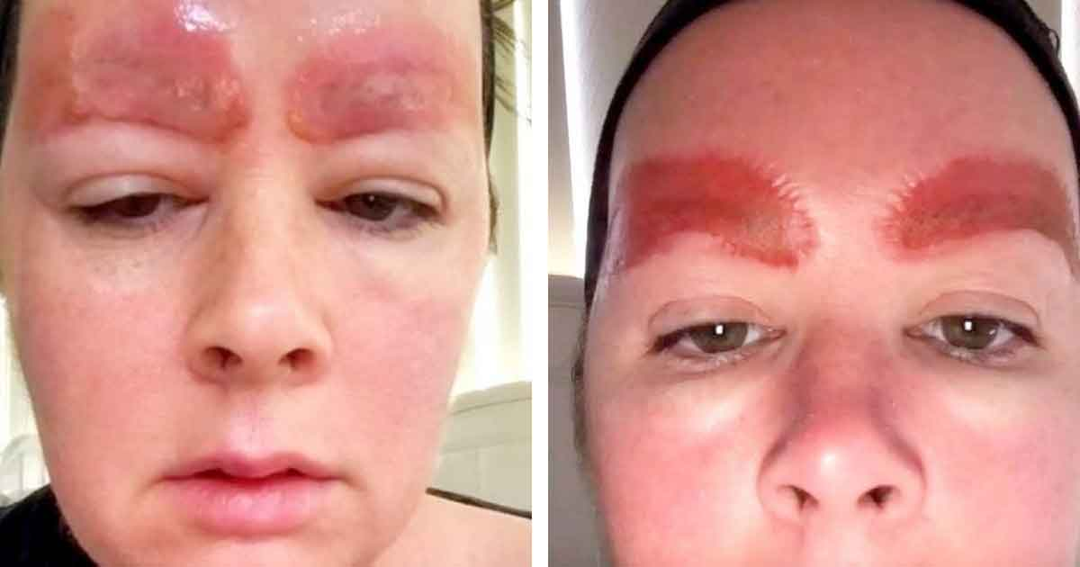Microblading Une terrible infection fait tomber ses sourcils1