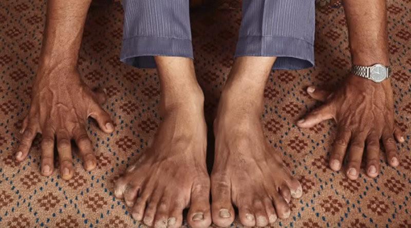 Record du monde Vous ne devinerez jamais combien de doigts à cet homme