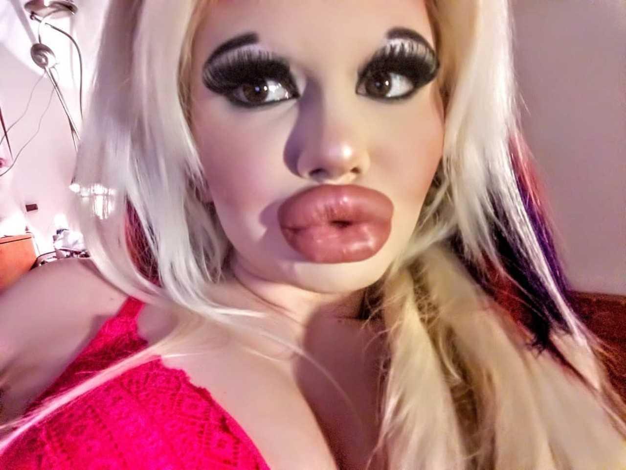 Elle subit plusieurs opérations pour ressembler à Barbie Le résultat est plutôt étrange
